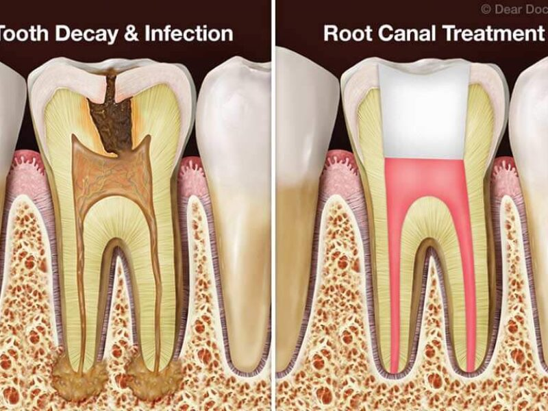 https://www.hamiltonfamilydental.co.nz/wp-content/uploads/2021/04/after-root-canal-1-800x600.jpg