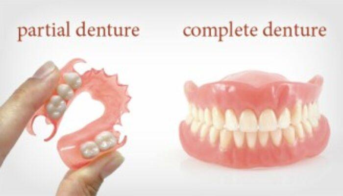 https://www.hamiltonfamilydental.co.nz/wp-content/uploads/2021/04/complete-partial-dentures-New-700x400.jpg
